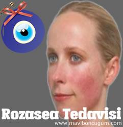 Rozasea Tedavisi